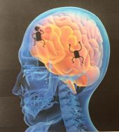 brain running